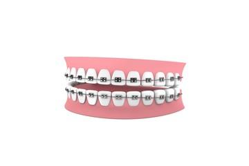 Zahnspange-Kieferorthopädie