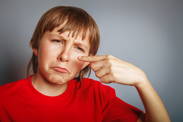 European-looking boy of ten years pimple on the nose, upset over