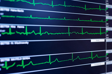 Close-up view of ECG monitor
