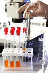 Assistant hand in gloves making analysis in laboratory with