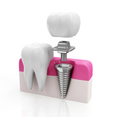 Health Tooth and Dental implant isolated on white background