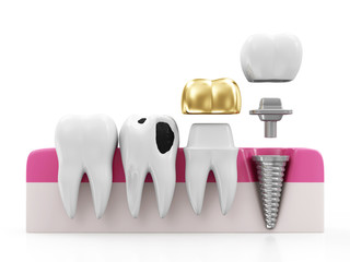 Health Tooth, Teeth with Caries, Dental Crown and Implant