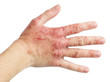 Eczema on a female hand - 78587046