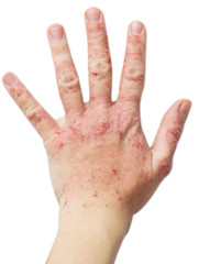 Eczema on a female hand