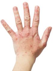 Eczema on a female hand