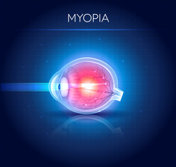 Myopia eyesight disorder