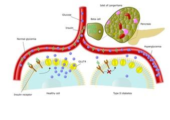 diabete di tipo 2, iperglicemia e scarsa insulina