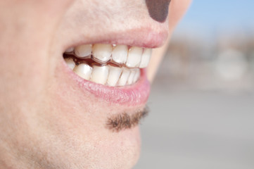 young man wearing clear retainers