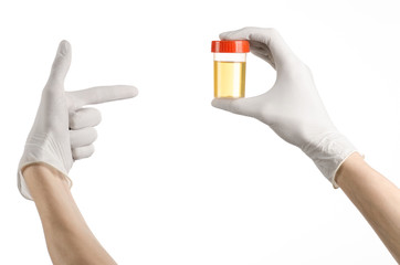 hand doctor in white gloves holding container of urine analysis