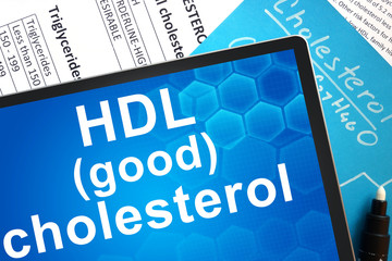 cholesterol formula and HDL (good) cholesterol