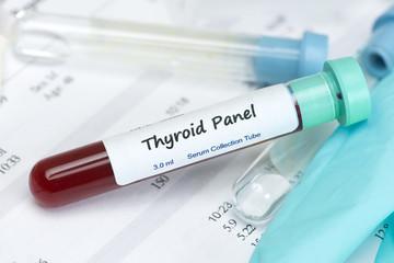 Thyroid Test Sample