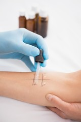 Doctor doing skin prick test at his patient