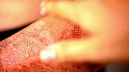 Close up of lubrication wound healing cream. Extreme macro video