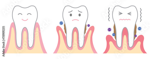歯周病 - 78989235