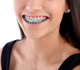 Smiling teenager girl with brackets