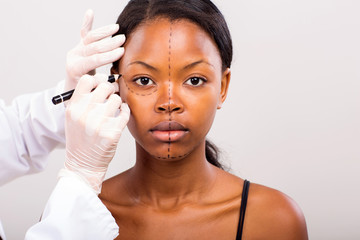 cosmetic surgeon drawing lines on african girl face
