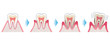 Leinwandbild Motiv 歯の断面図 歯周病