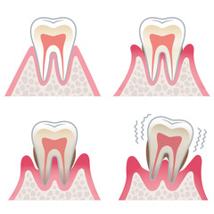 歯の断面図 歯周病