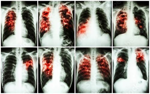 Pulmonary Tuberculosis Collection - 79099001