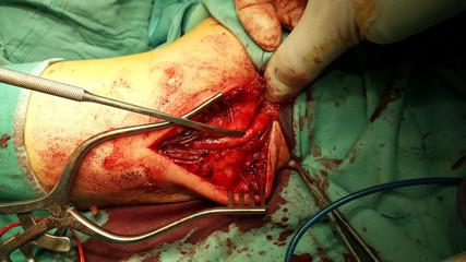 ulnar nerve surgery