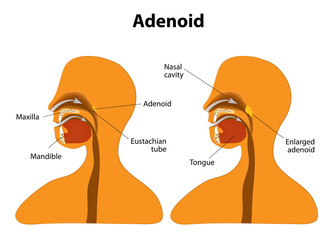 Adenoid. Normal and Enlarged adenoid