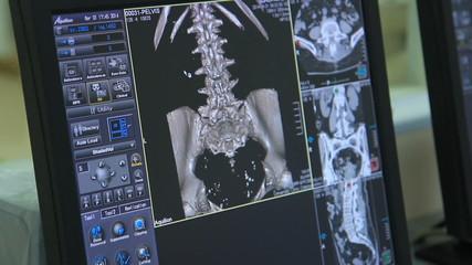 CT and MRI scanning, testing, analysing