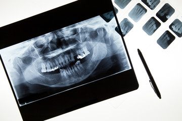 Panoramic dental X-Ray film for dentist