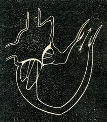 Ventricular systole of heart