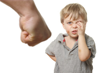 Child with bruise wiping tears.