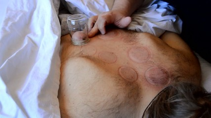 Cupping Therapy Is Now Over