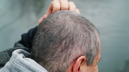 Man with itchy head at outdoors