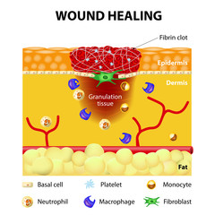 process of wound healing