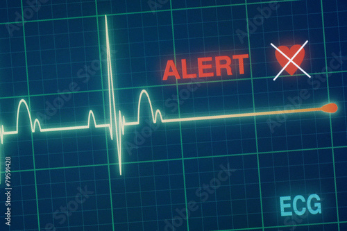 Heart beats cardiogram on the monitor. - 79591428