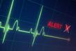 Heart beats cardiogram on the monitor. - 79592299