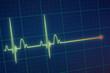 ECG / EKG monitor - 79592862