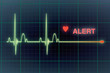 Leinwanddruck Bild - Heart beats cardiogram on the monitor.