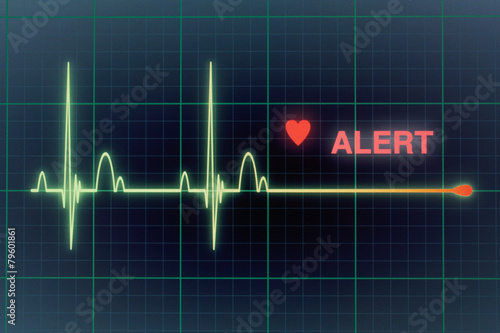 Heart beats cardiogram on the monitor. - 79601861