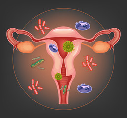 Ill female reproductive system. Vector illustration
