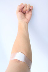 wound after blood donation