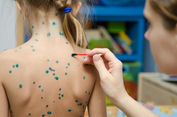 Lubrication zelenkoj chickenpox sores on back of a little girl