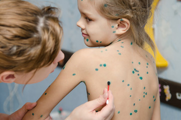 Little girl with chickenpox sores smeared zelenkoj