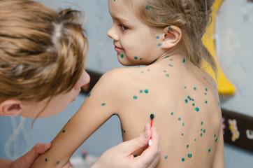 Little girl with chickenpox sores smeared zelenkoj