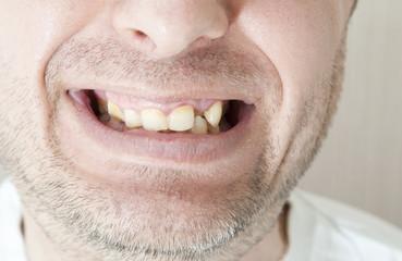 Diseased teeth of the patient.