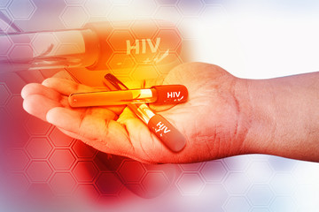 Blood collection tube with HIV test , HIV positive and negative