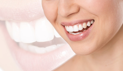 Teeth treatment, whitening and protection. Perfect white smile