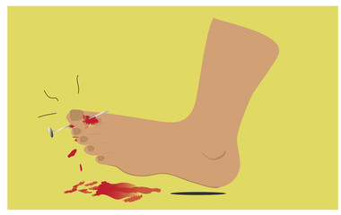 The foot injury