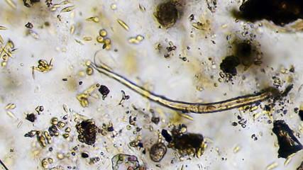 Protozoa Micoscope View 600x