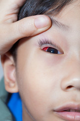 Closeup of Pinkeye (conjunctivitis) infection on a boy, doctor c