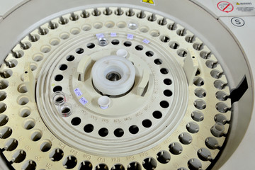automated analyzer