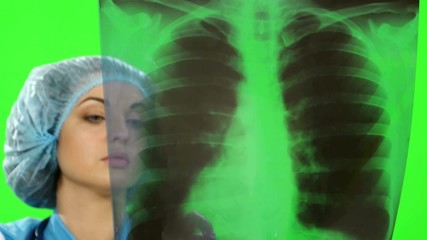 Young female doctor looking at the x-ray picture of lungs in